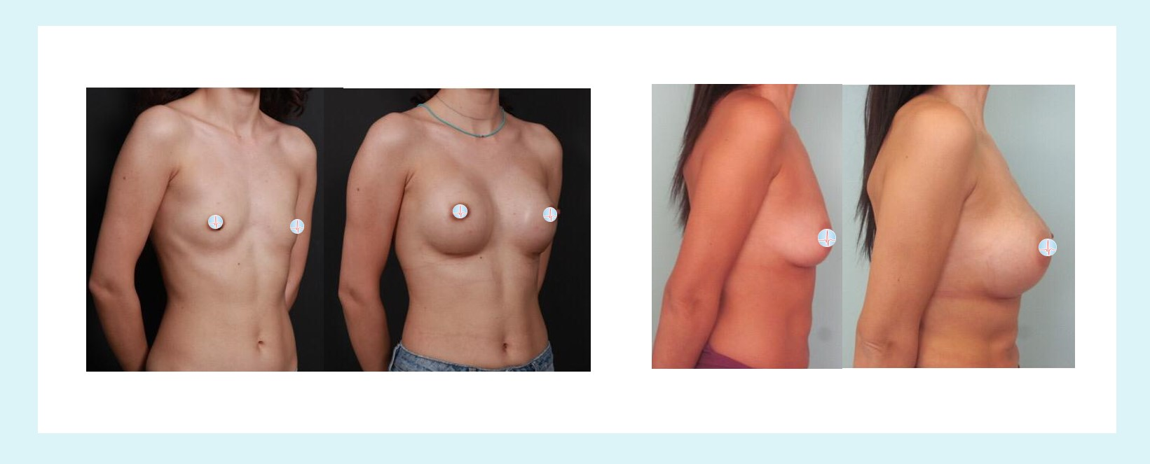 Breast before and after