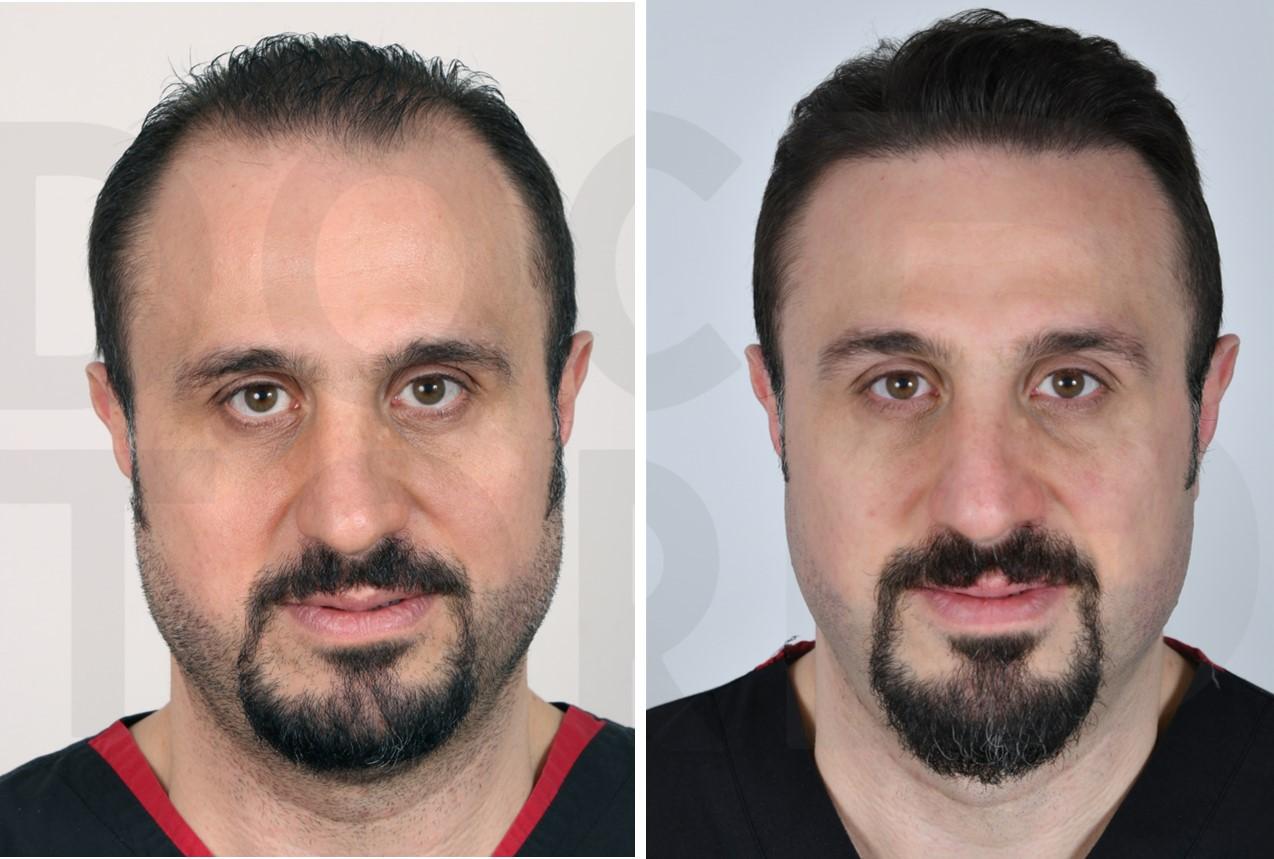 пересадка волос до и после 2