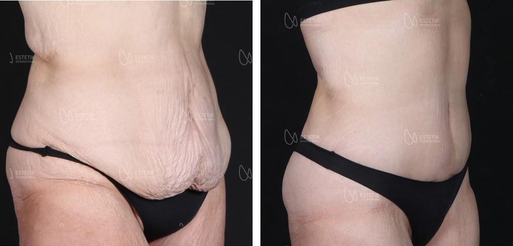 абдоминопластика до и после 2