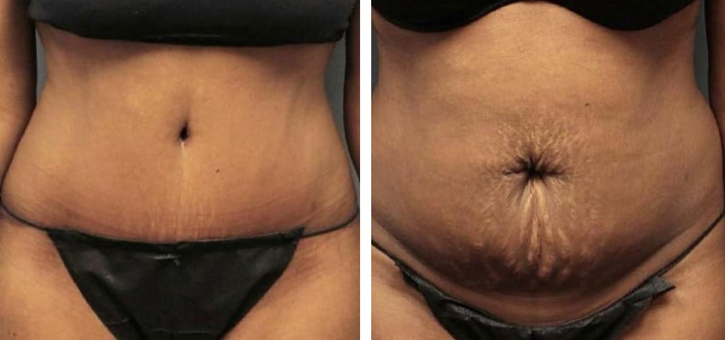 абдоминопластика до и после 3