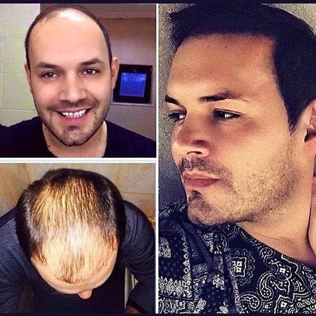 пересадка волос в турции после