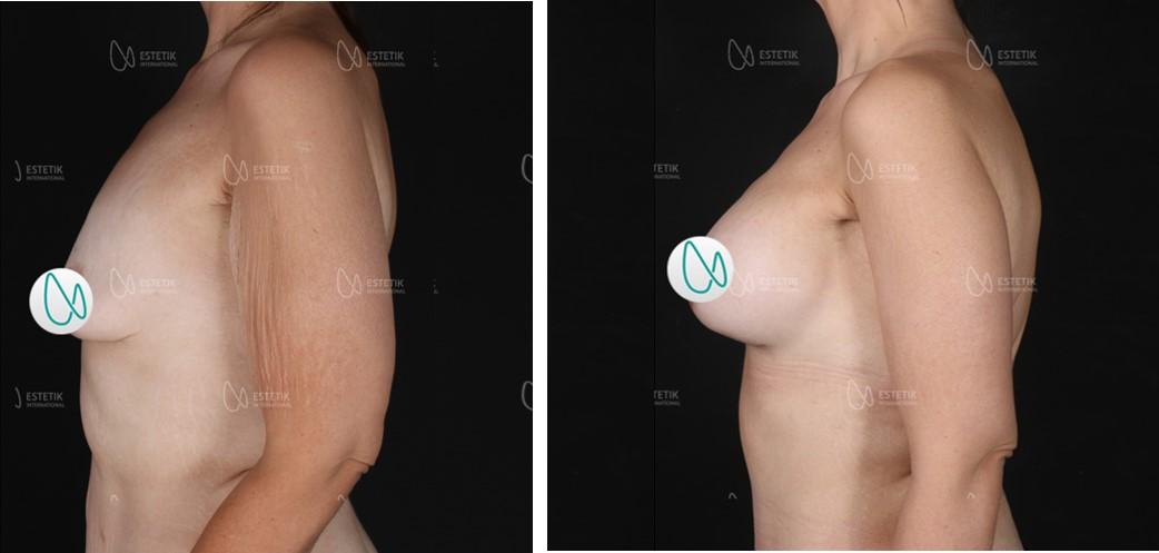 увеличение груди до и после1