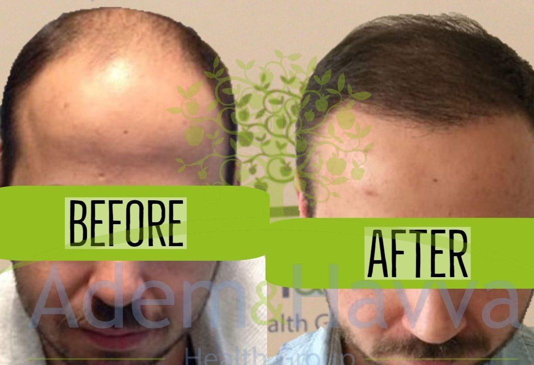 пересадка волос до и после 10