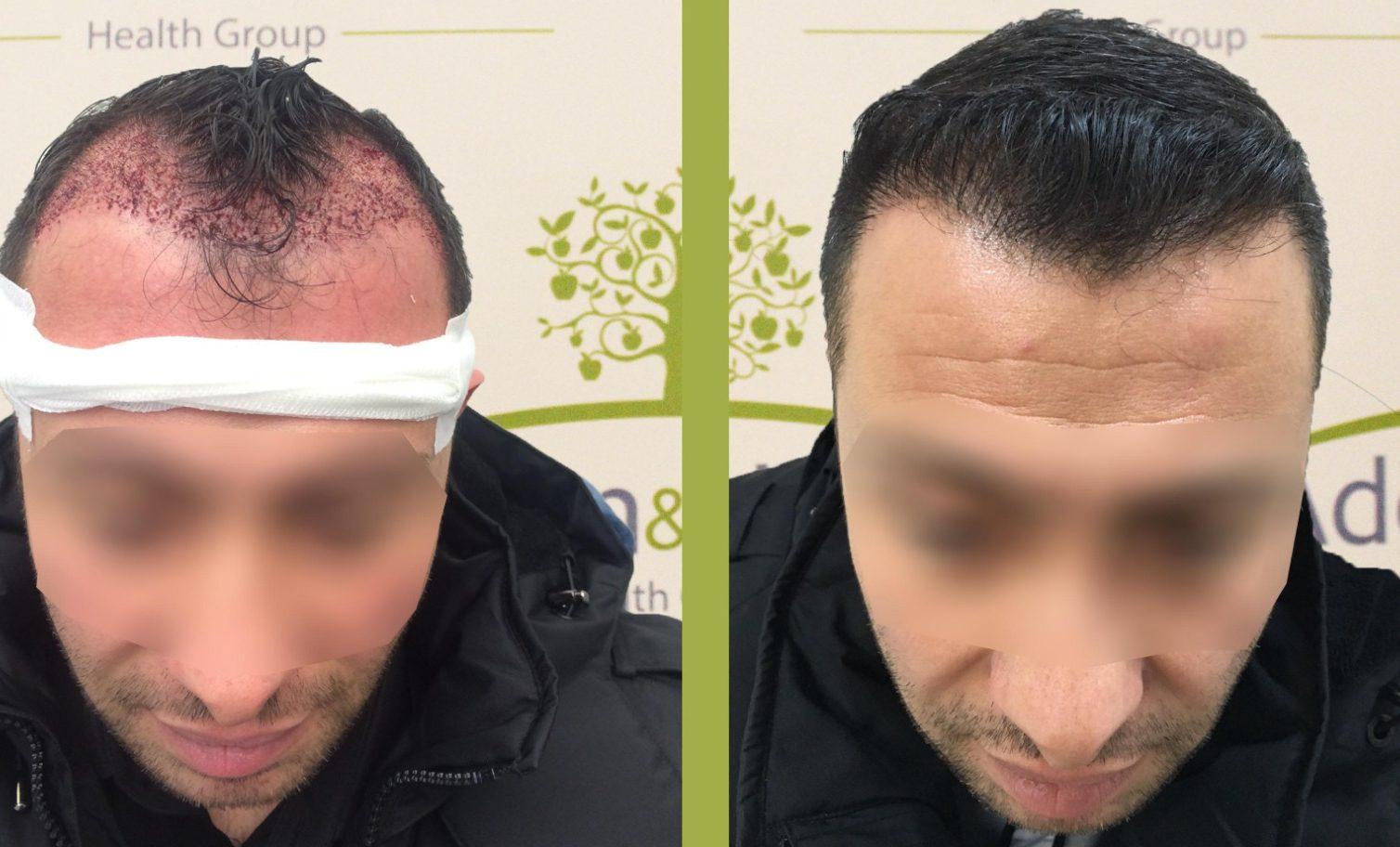 пересадка волос до и после 16