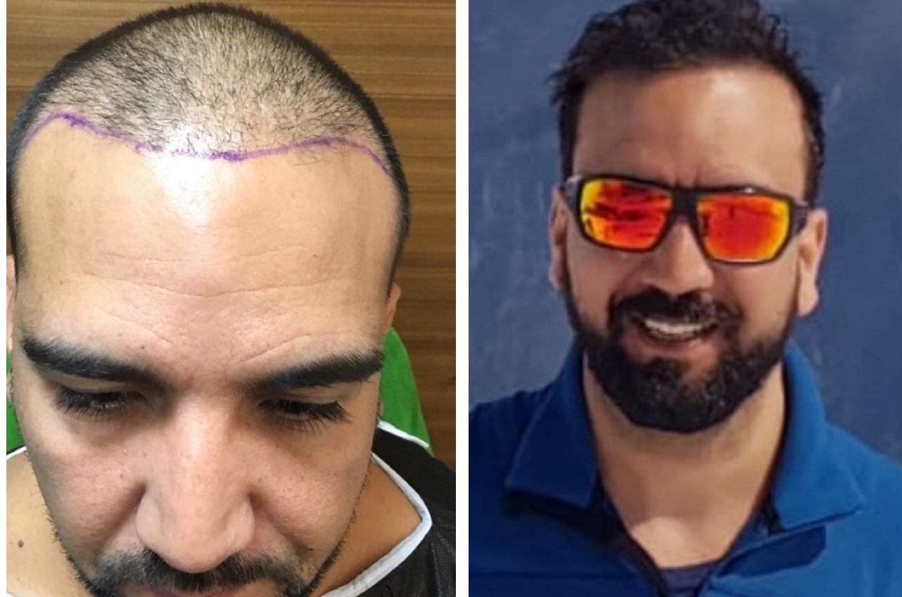 пересадка волос до и после 3