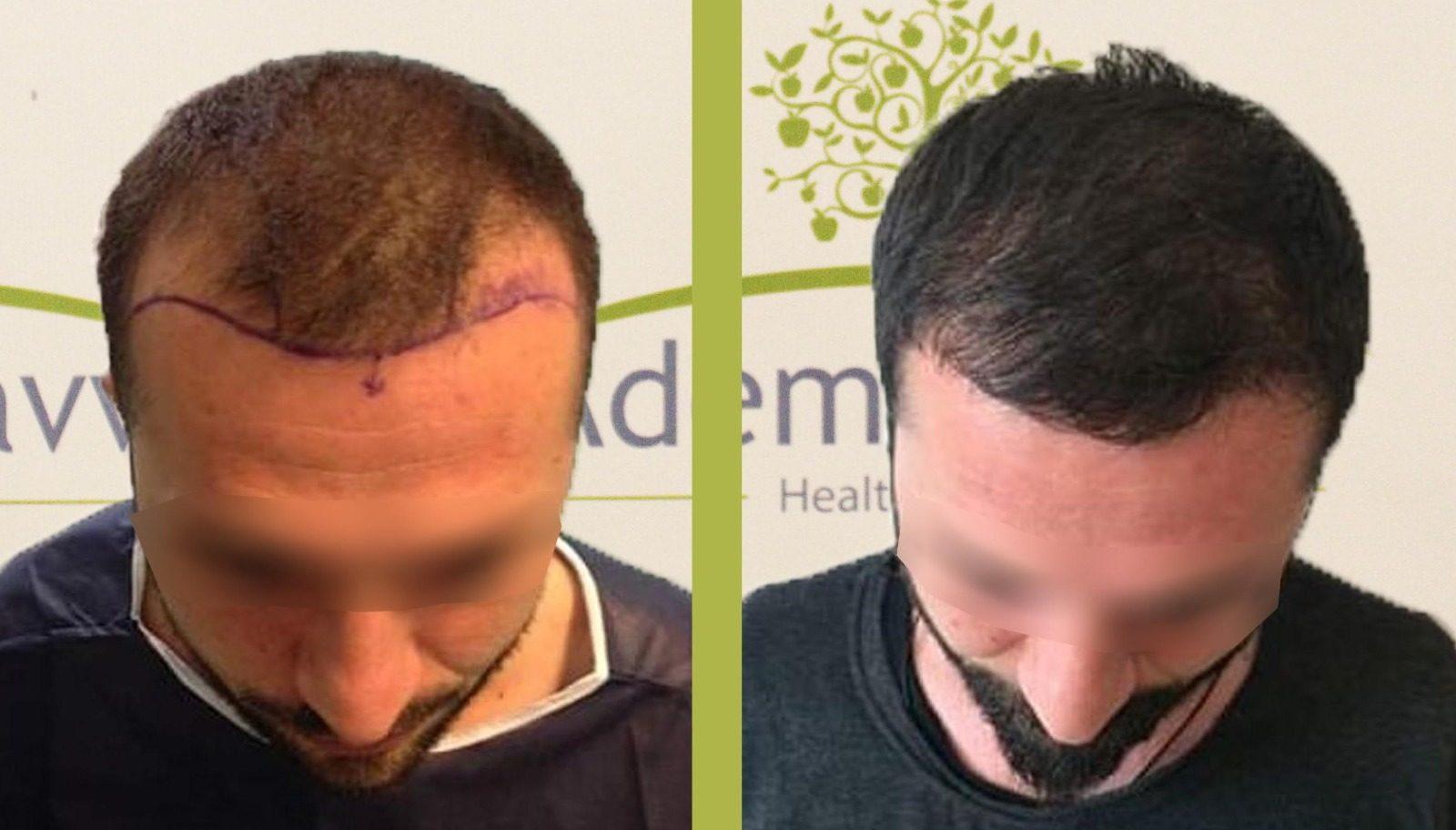 пересадка волос до и после 5