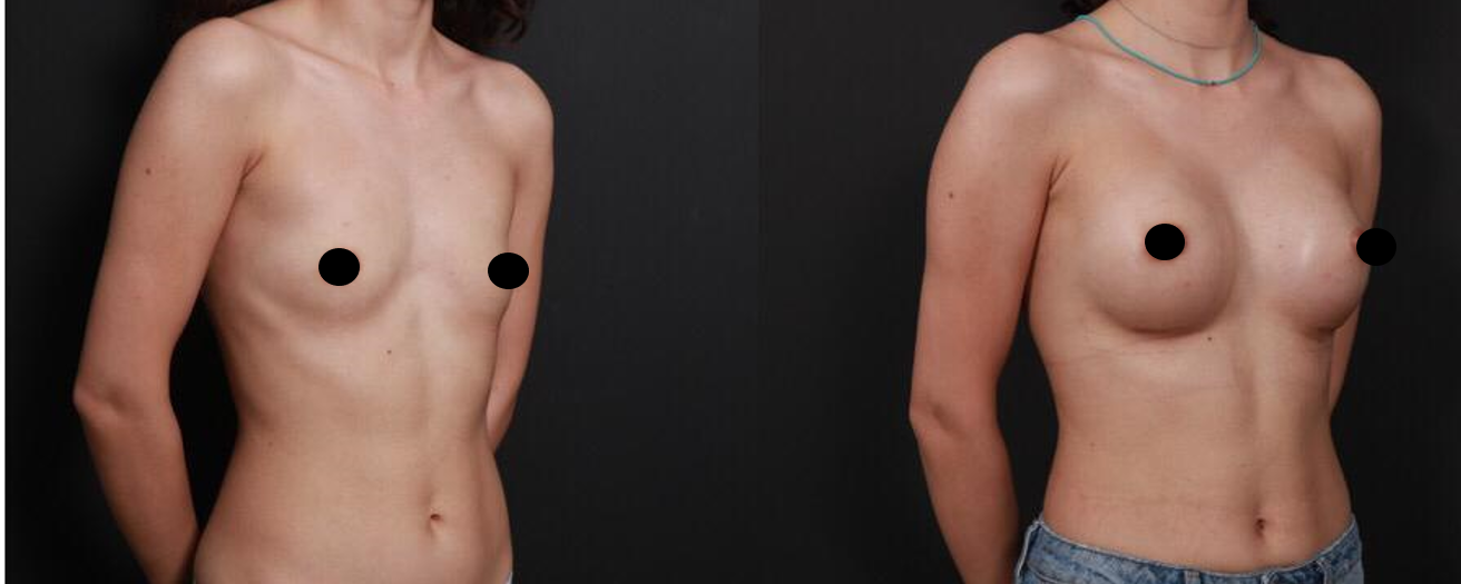 breast augmentation in turkey