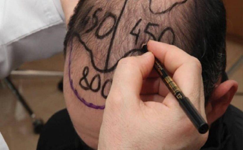Подготовка к пересадке волос